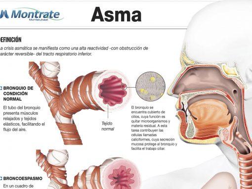 Infografía «Asma»