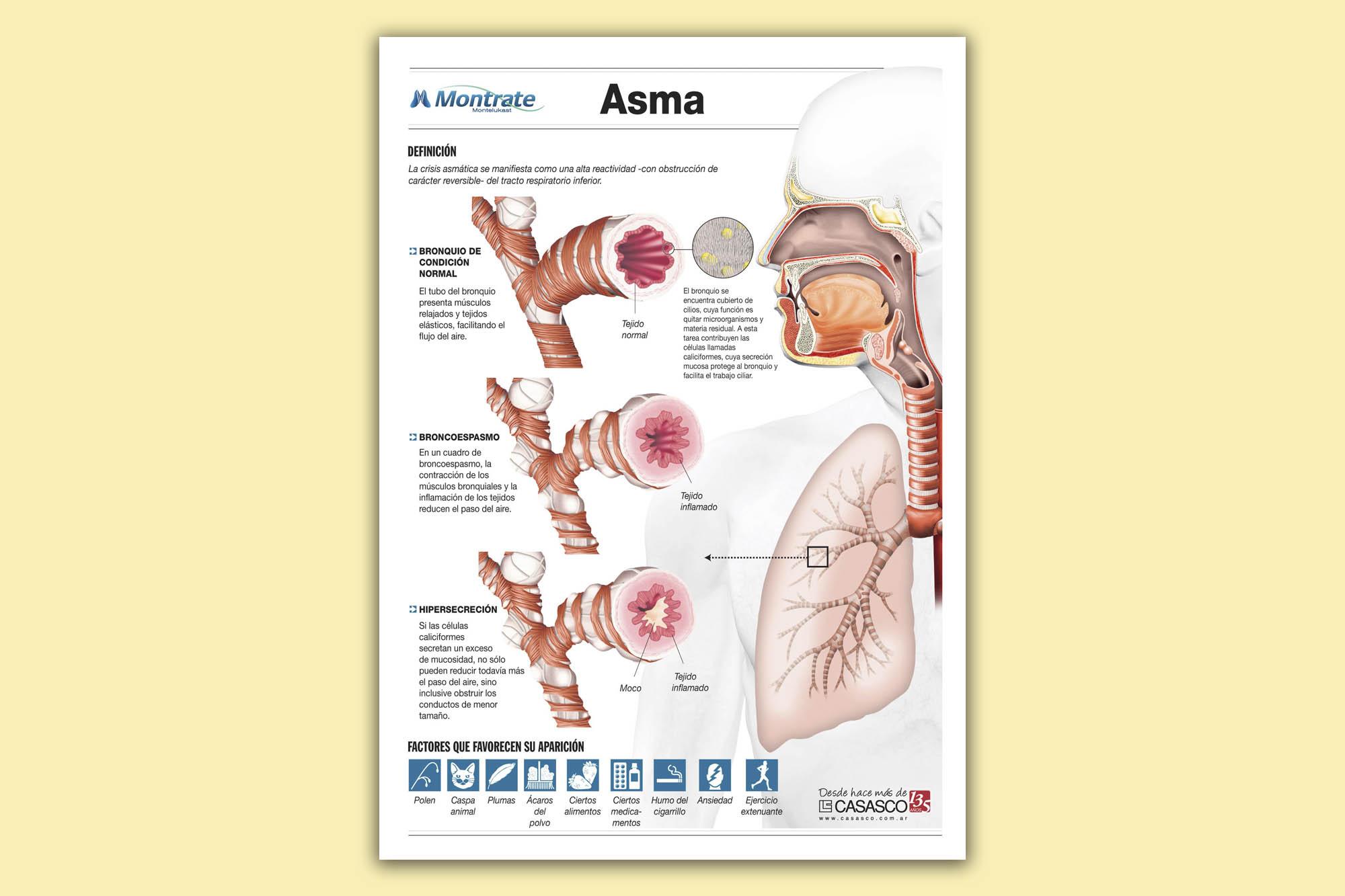 asma_1