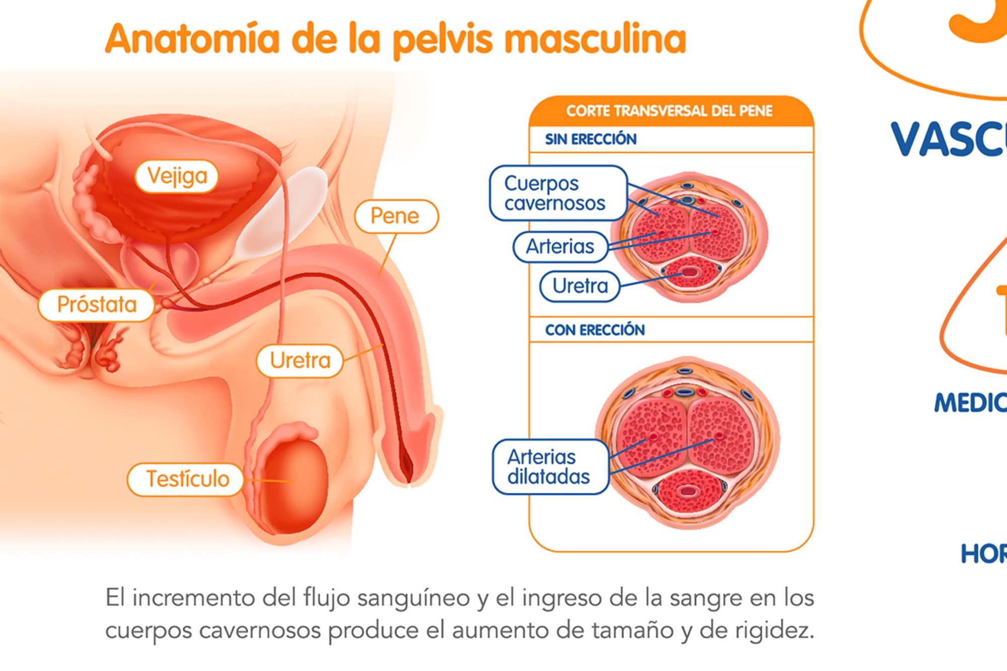 disfuncion-erectil-4